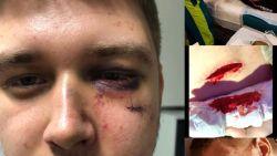 Ensor (20) ko geslagen tijdens carnavalsfeest nadat hij zus wil beschermen tegen ongewenste aanrakingen