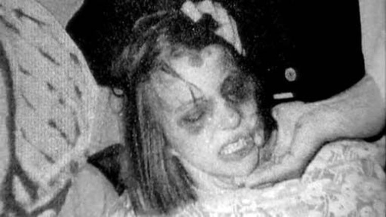 Het toegetakelde gezicht van Aneliese