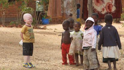 Albinojongen vermoord en in stukken gesneden in Burundi