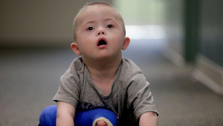 Een jongetje met het syndroom van Down.
