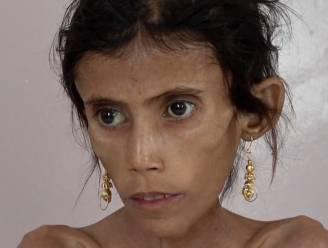 Fatima (12) is zo mager dat ze amper kan bewegen