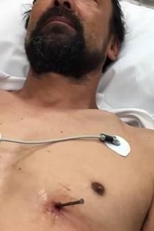 Man schiet zichzelf in borst met spijkerpistool en overleeft het