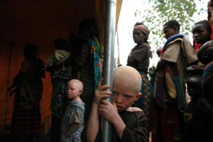Dans certains pays africains, les albinos sont parfois pourchassés, tués et amputés de membres et d'organes, ensuite utilisés pour des rituels magiques censés apporter richesse et chance.