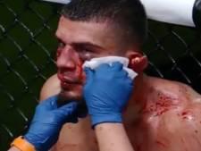MMA-vechter verliest bijna oor tijdens debuut