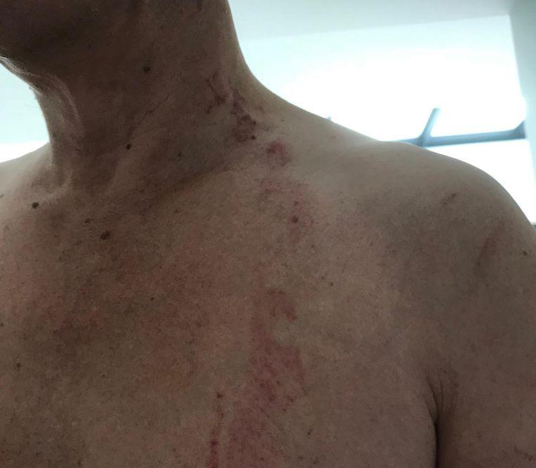 De verwondingen van het slachtoffer lopen van het oor tot aan zijn borststreek.
