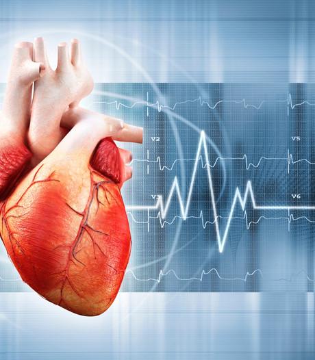 Milde hartproblemen geven meer klachten bij vrouwen dan bij mannen