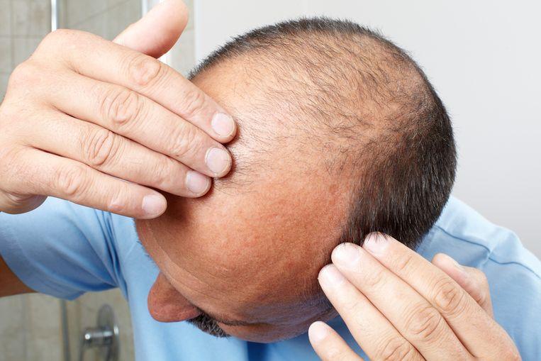 Mannen die meer dan 40 uur per week werken gebruiken meer haarverliesremmers.