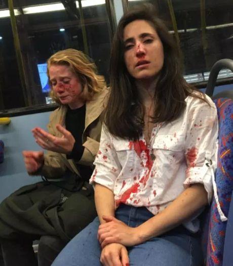 Lesbisch stel in elkaar geslagen omdat ze weigerden te zoenen