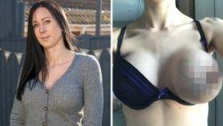 Vrouw loopt drie maanden rond met één enorme borst door gescheurd implantaat