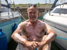 Leo Pekaar uit Yerseke heeft vitiligo: Het is wennen dat er vaak naar je gekeken wordt