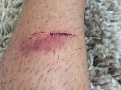 Dylan (15) voelt zich niet meer veilig na incident in Valkenswaard: 'Misschien komt ie wraak nemen'