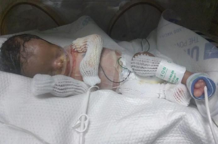 Le bébé né sans peau a un an.