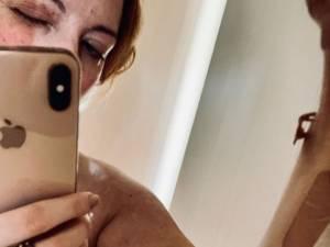 Loana battue par son ex? Elle partage des images choquantes de son corps tuméfié