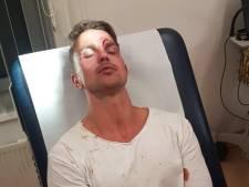 29 aanhoudingen op festival in Erp: Alard (30) kreeg klap en kopstoot