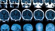 Ziekte van Huntington blijkt 'superkiller' van kankercellen: nieuwe behandeling in het verschiet