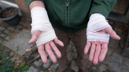 """Hector (68) verbrandt handen na gebruik alcoholgel: """"Ze schoten in vlam toen ik sigaartje opstak"""""""