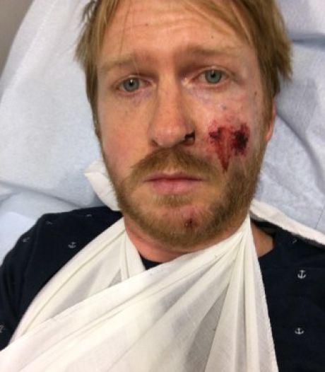 Wegdek direct hersteld na tweet bekende operazanger over val van fiets in Baarn