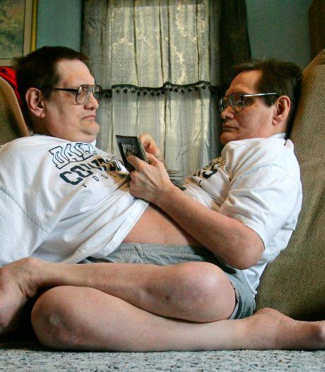 Les plus vieux frères siamois au monde sont décédés à l'âge de 68 ans