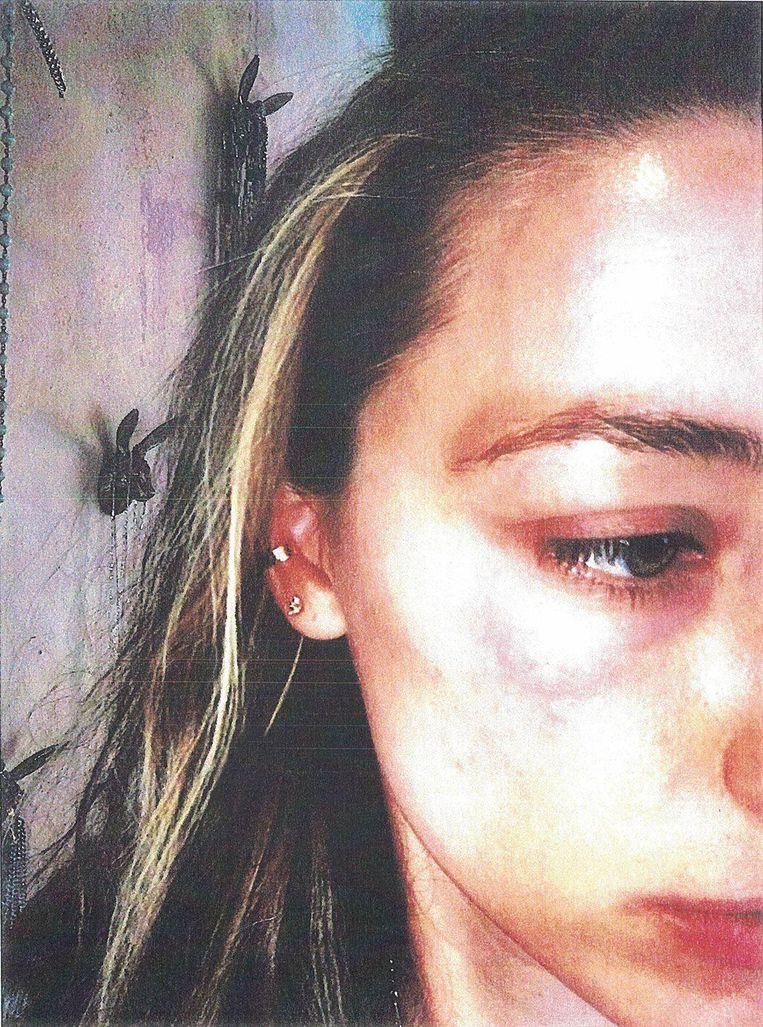 Amber deelde deze foto na afloop van een hevige ruzie met Depp.