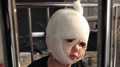"""Maand na ongeval in refter mag Diego (3) ziekenhuis verlaten: """"Binnen vier weken terug naar school"""""""