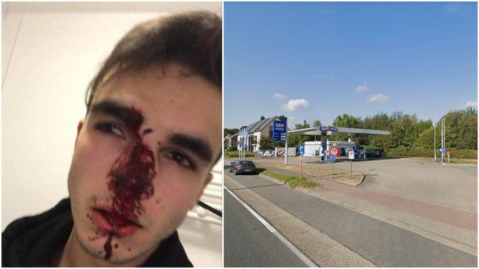 De jongeman liep onder meer een gebroken neus op door het incident aan het tankstation.