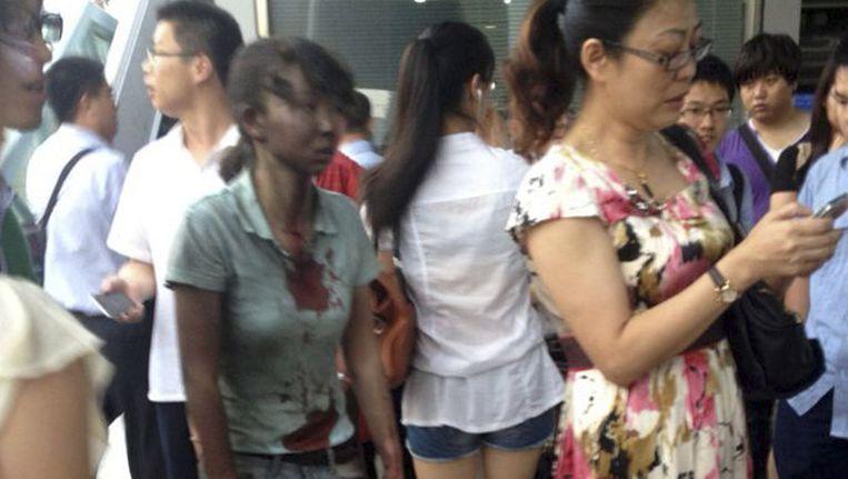 Een van de gewonde buspassagiers. Beeld ap