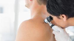 """""""Huidtumor ontstaat uit cellen onder huidoppervlak die pigment produceren"""""""