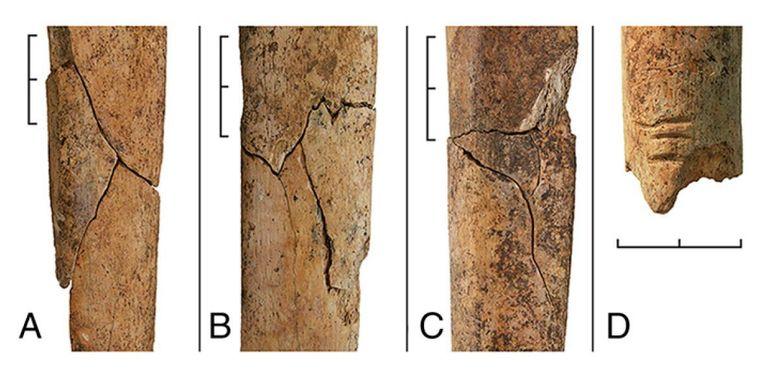 Gebroken scheenbenen, plus een afgehakte arm (rechts). Duidelijk te zien hoe ze meerdere keren hebben gehakt. Beeld Christian Meyer