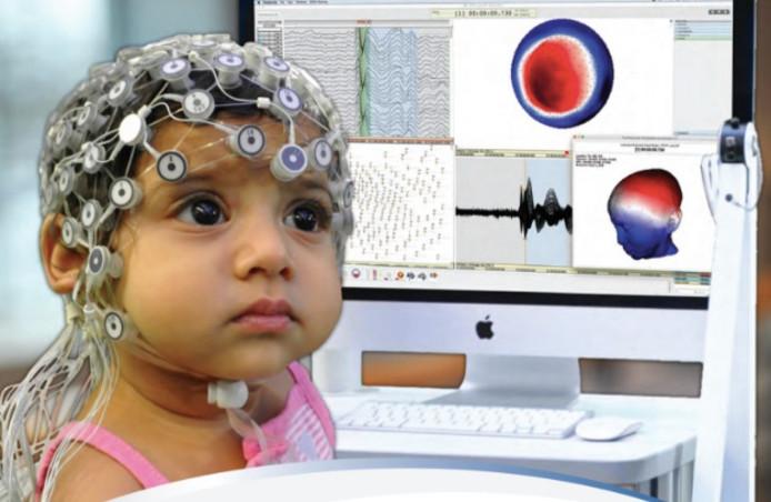 Voor het epilepsie-onderzoek worden 128 tot 256 sensoren op het hoofd van de proefpersonen geplaatst.