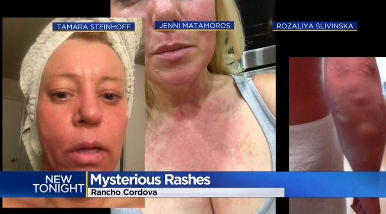 Matamoros bleek niet de enige met een allergische reactie.
