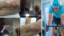 Luis Leon Sanchez deelt twee weken na stevige valpartij opvallende foto van elleboog