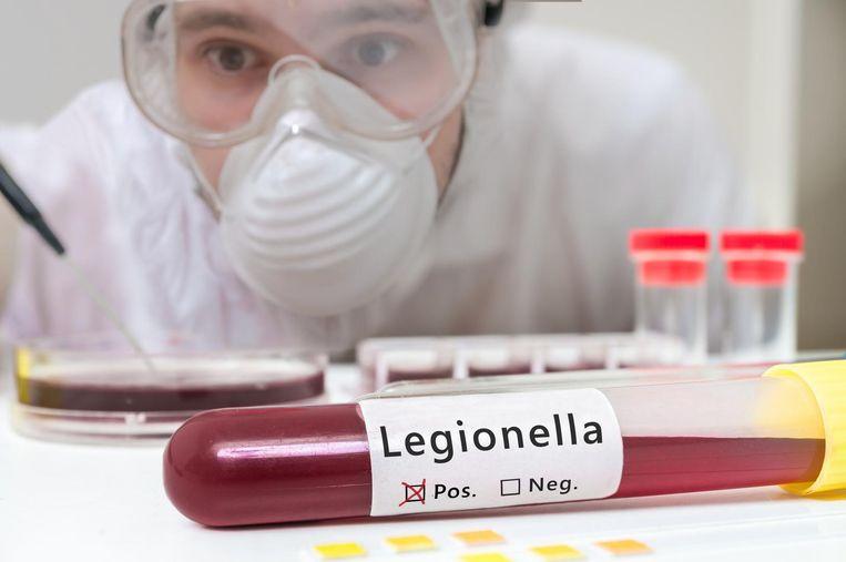 Beeld ter illustratie, onderzoek legionella.