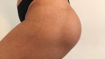 Vrouw trekt naar Turkije voor bilvergroting, maar krijgt borstimplantaten in haar achterwerk