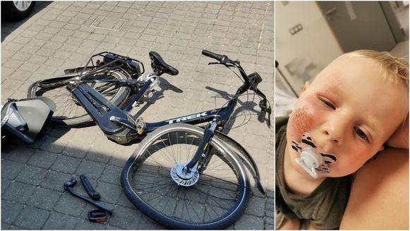 Links: na het verkeersongeval was de fiets van Amy rijp voor de schroothoop. Rechts: Egon (3) had enkel wat schrammen op zijn wang.