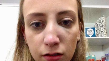 """Leuvense studente (20) die klappen kreeg op café zoekt getuigen: """"Ik wil weten wie mij een gebroken neus sloeg"""""""