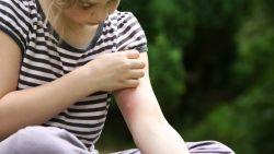 Gestoken door mug, wesp of teek? Arts legt uit welke middeltjes (niet) werken