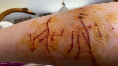 Vrouw wordt aangevallen door agressieve kat in Berchem