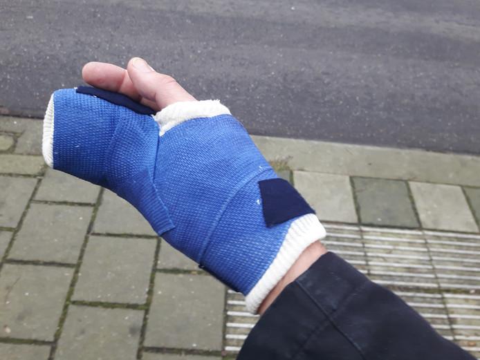 Een van de slachtoffers brak twee middenhandsbeentjes in zijn rechterhand