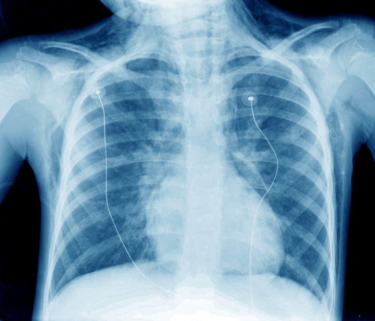 Een röntgenfoto van een 8-jarige astmapatiënt. Beeld ANP