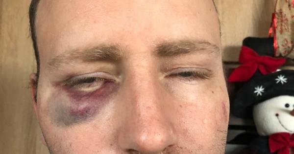 Pakketbezorger Wally klemgereden en in elkaar geslagen: 'Hij dacht dat ik een middelvinger opstak'