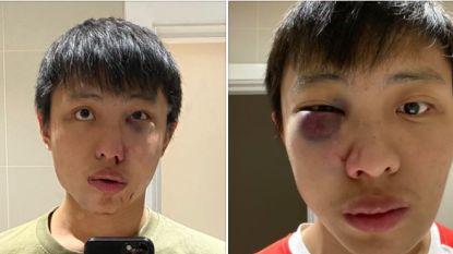Aziatische man (23) slachtoffer van 'coronaracisme' op straat in Londen