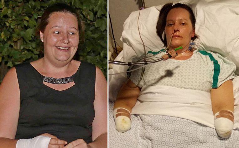 Tara De Bolle ligt momenteel in het ziekenhuis. Haar toestand is stabiel, maar dokters amputeerden wel haar onderarmen.