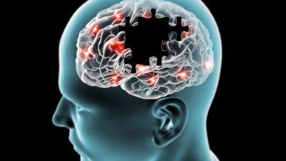 """Wetenschappers aan KU Leuven zetten """"belangrijke stap"""" naar therapie tegen Parkinson"""