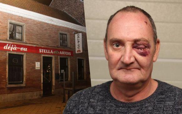 Cafébaas Luc  Coppens van Déjà-Vu in Lede mocht na een eerste operatie aan zijn oog inmiddels het ziekenhuis verlaten.
