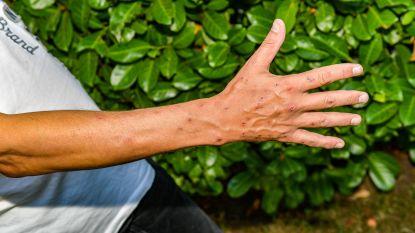 """Man die met 38 wespensteken in ziekenhuis belandde: """"Ik spoot insectenspray en 300 wespen vielen mij aan"""""""
