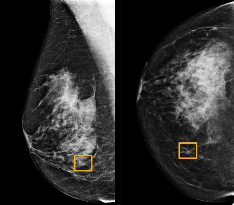 In het gele vierkantje heeft een systeem van artificiële intelligentie kankertumoren in het borstweefsel van een vrouw gedetecteerd.