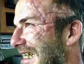 David Beckham verrast volgers op Instagram met foto van enorm litteken