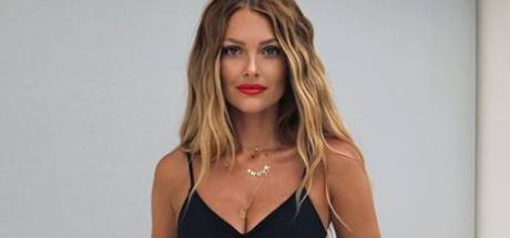 Sans maquillage, Caroline Receveur dévoile son acné hormonale