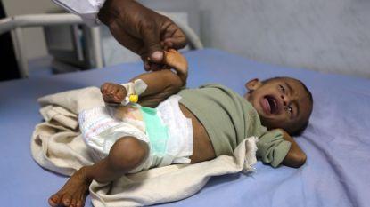 """""""'s Werelds ergste humanitaire crisis"""": 5 kinderen per dag raken gewond of sterven in Jemen"""