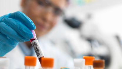 Nieuwe doorbraak in strijd tegen aids: therapie voorkomt besmetting met hiv-virus